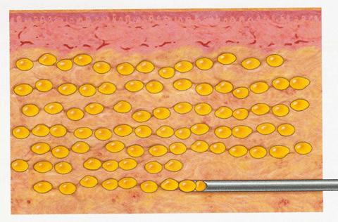 Fat Grafting Technique