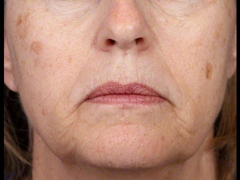 Aging Spots on the Face