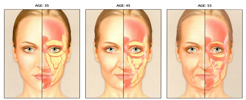 Facial Volume Loss due to Aging
