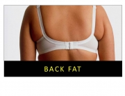 BACK FAT _Dr Marco Plastic Surgery