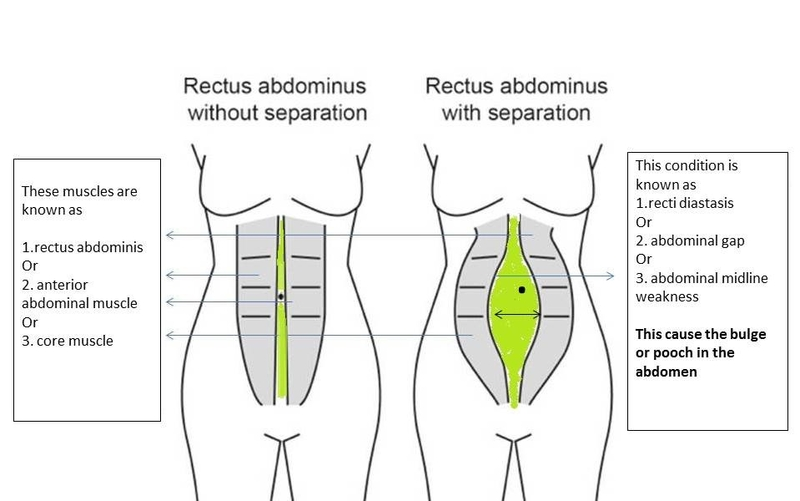 rectus diastasis pix for pt resize