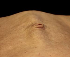 diastasis rectus abd
