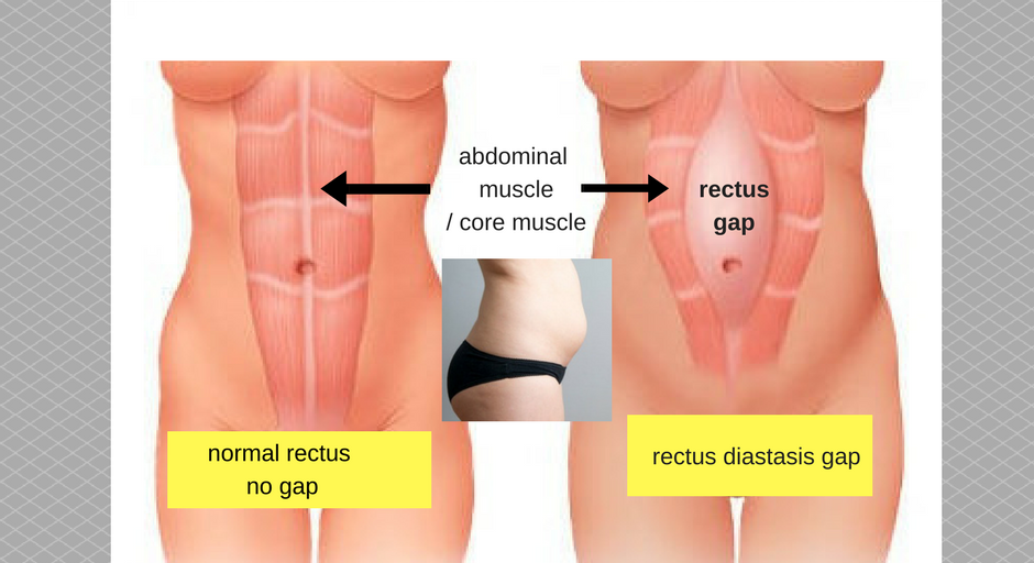 how does rectus diastasi gap look like (2)