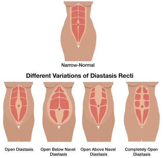 rectus diastasis types