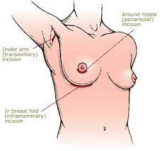 Breast Aug Incisions