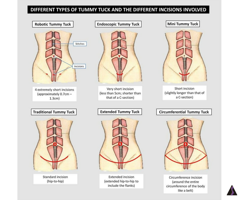 types of tummy tuck
