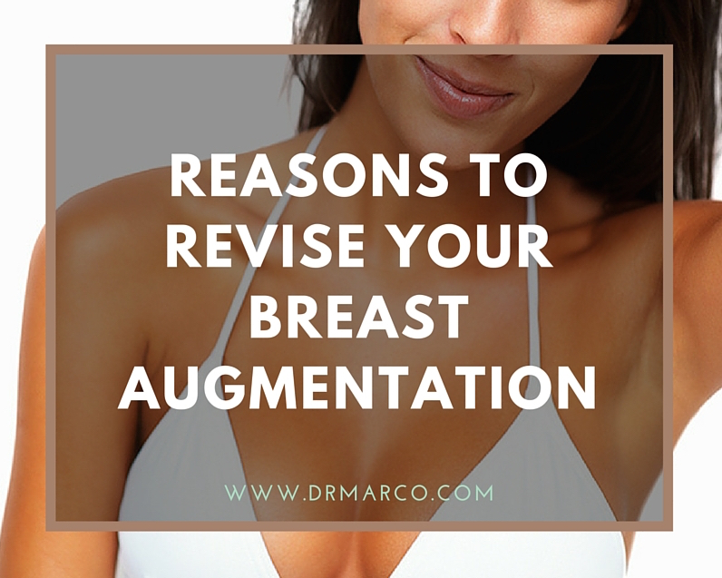 Reasons to revise your breast augmentation