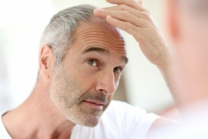 Hair loss is usually caused by three factors: genes, hormones, and age.