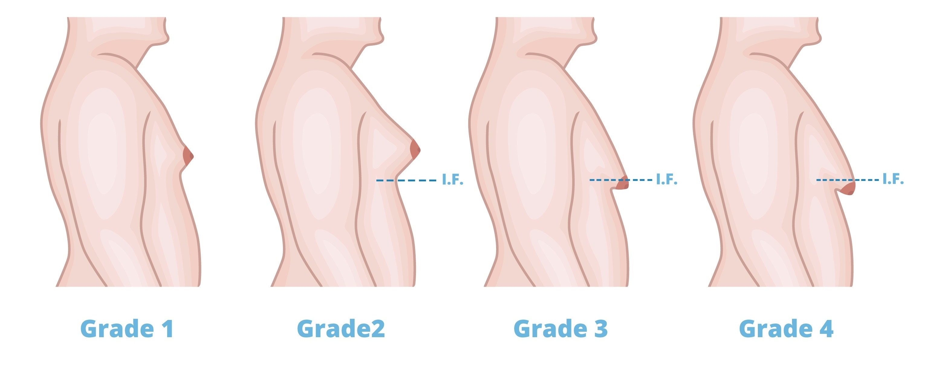 The different grades of Gynecomasta based on the following: size of breast  tissue development, severity of the condition and feminization of the breast .