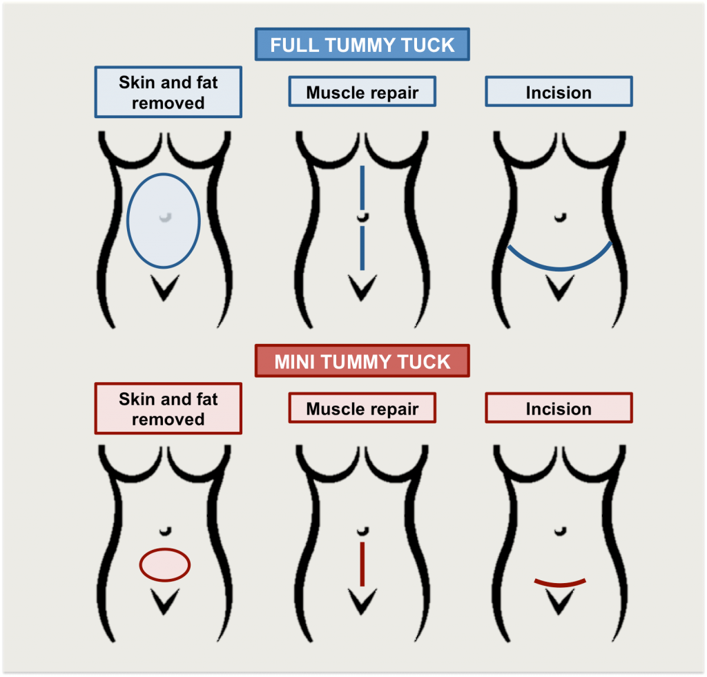 Tummy Tuck Singapore
