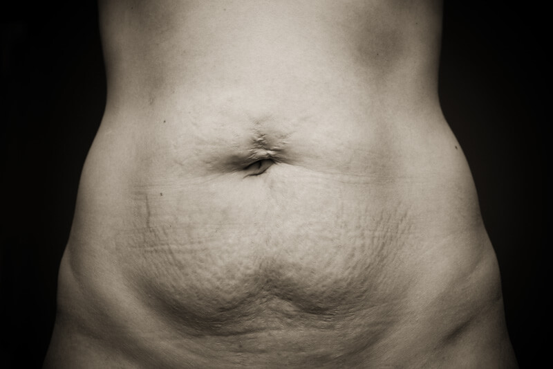 Post Pregnancy Body With Rectus Diastasis