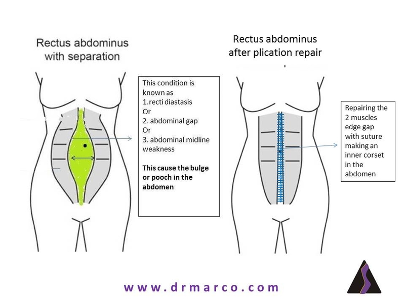 Rectus abdominus after plication for pt resize