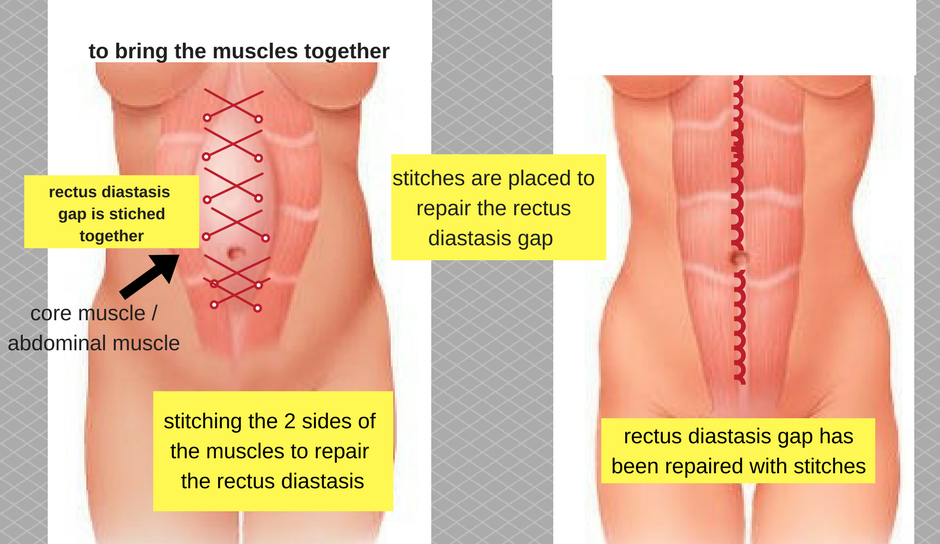 how is rectus diastasis repaired