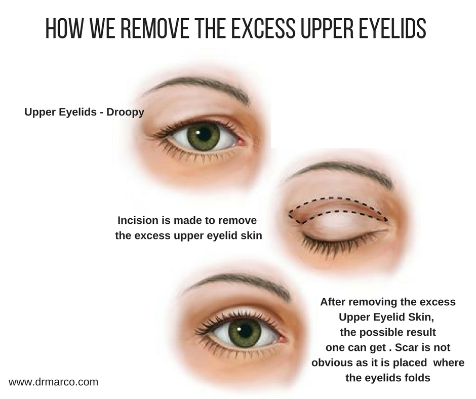 How do we remove excess upper eyelids skin_drmarco_2018