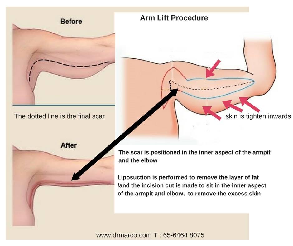 armliftprocedure_drmarcoplasticsurgery2018
