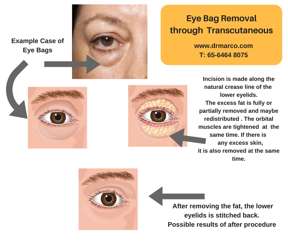 eyebag removal transub_drmarcoplasticsurgery